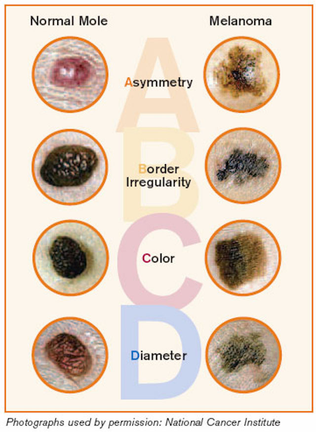 The ABCDE Rules of Skin Cancer